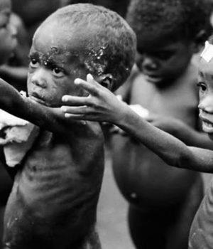 bambini-africani-malnutriti